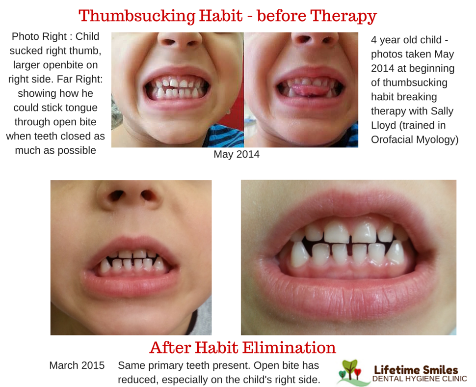 Thumbsucking Habit - before Therapy