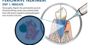 Periowave_Treatment_Step_1_0 - Copy